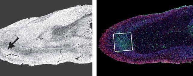 Autopsitë zbulojnë dëmin që mund të shkaktojë Covid-19 në trurin e njeriut