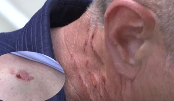 (VIDEO) Lëndime të rënda në qafë dhe shpinë / Çmendet pronari kosovar, rreh keq punëtorin e tij që punonte si shofer, shkak një 15 eurosh