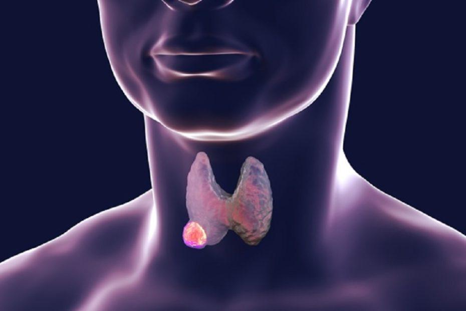 nodusi-tiroides.jpg